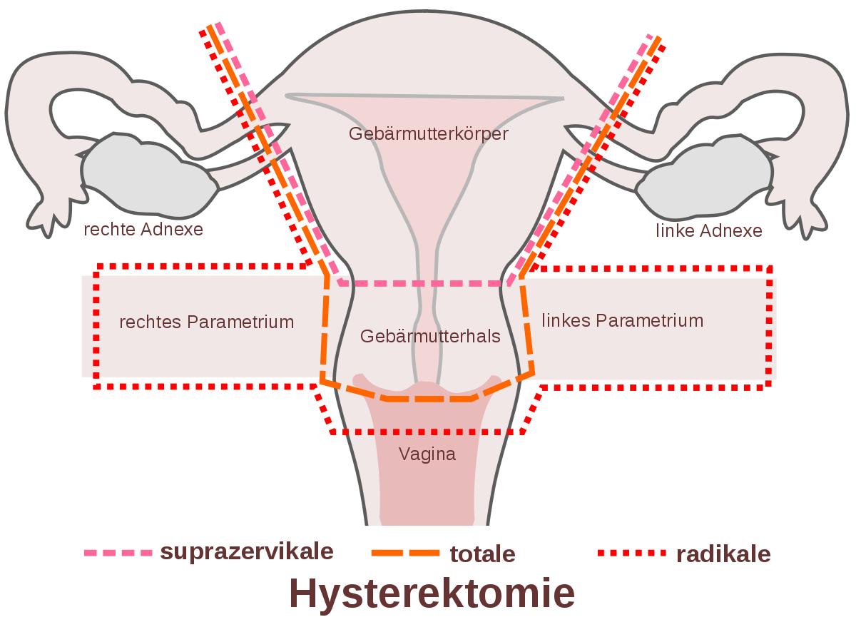 Hysterektomie (Gebärmutterentfernung)